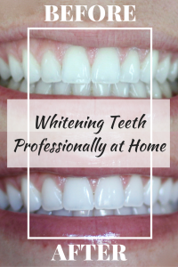 whitening teeth at home